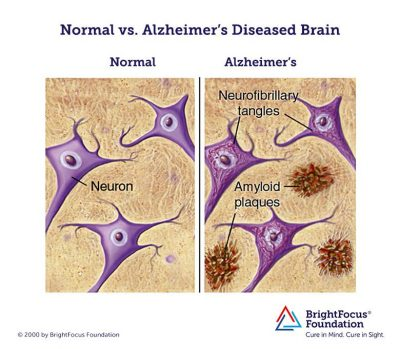 Normal_vs_Alzheimers_Brain