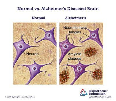 Normal_vs_Alzheimers_Brain
